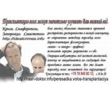 Пересадка волос. Трансплантация собственных волос Крым. - Косметологические услуги, татуаж в Севастополе