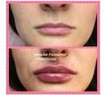 Увеличения губ, контурная пластика Севастополь - Косметологические услуги, татуаж в Севастополе