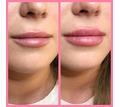 Увеличение губ, Контурная пластика Севастополь - Косметологические услуги, татуаж в Севастополе