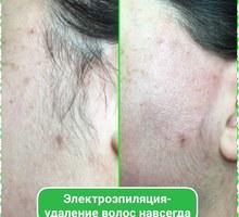 Электроэпиляция -удаление волос навсегда. - Уход за лицом и телом в Севастополе