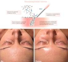 Чистка лица / Пилинг / Маски - Очищение омоложение и сияние кожи - Косметологические услуги, татуаж в Севастополе