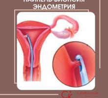 Пайпель-биопсия в Севастополе.Пайпель-тест.Гинеколог в Севастополе.МЦ Севклиник - Медицинские услуги в Севастополе