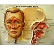Лечение гайморита  массажем - Массаж в Анапе