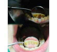 профессиональная чистка зубов - Стоматология в Краснодаре