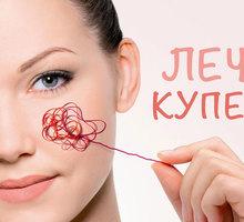 Профилактика и лечение купероза - Косметологические услуги, татуаж в Краснодарском Крае