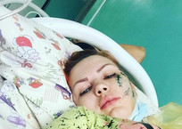Немецкие врачи сделали операцию на почках изувеченной в пьяной драке девушке из Апшеронска, фото — «Рекламы Апшеронска»