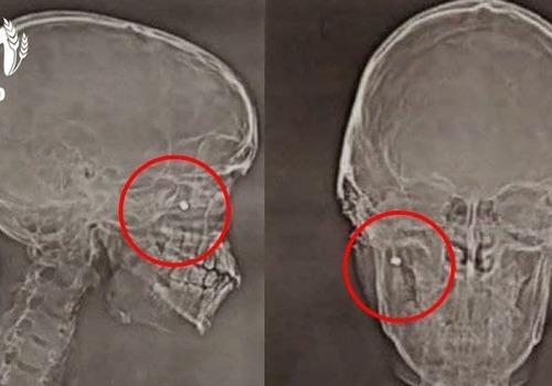 Во время сдачи норм ГТО пуля попала в щеку кубанского подростка