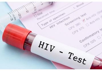 Анализ на ВИЧ в Крымске: где можно сдать, фото — «Реклама Крымска»