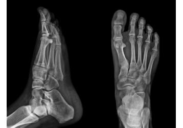 Где сделать рентген в Кропоткине, фото — «Реклама Кропоткина»