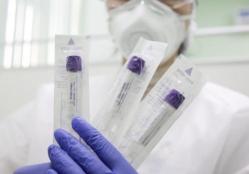113 новых случаев коронавируса за сутки выявили в Крыму