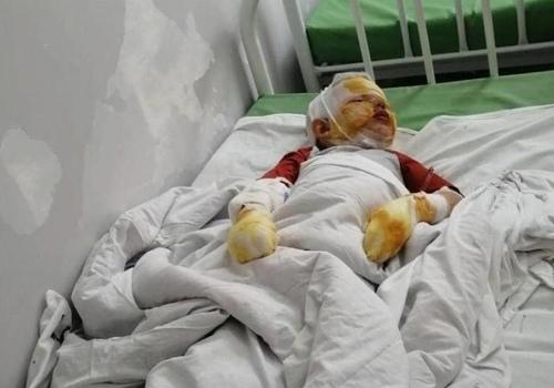 «Он сделал все, как и говорил»: в Крыму отец с ребенком подорвались на газовом баллоне